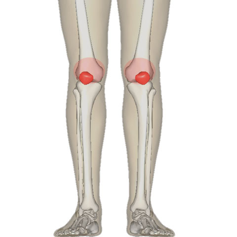 Patellofemoral Pain Syndrome Doctor |Knee Osteoarthritis Doctor | Colorado and Surgery | Colorado